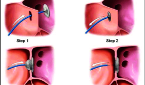 Diagram of closure of the hole in the heart