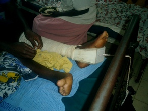 Maria in Hospital,Her leg supported