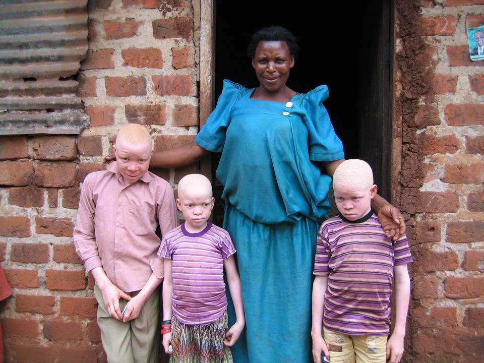 End skin cancer for people with albinism in Uganda