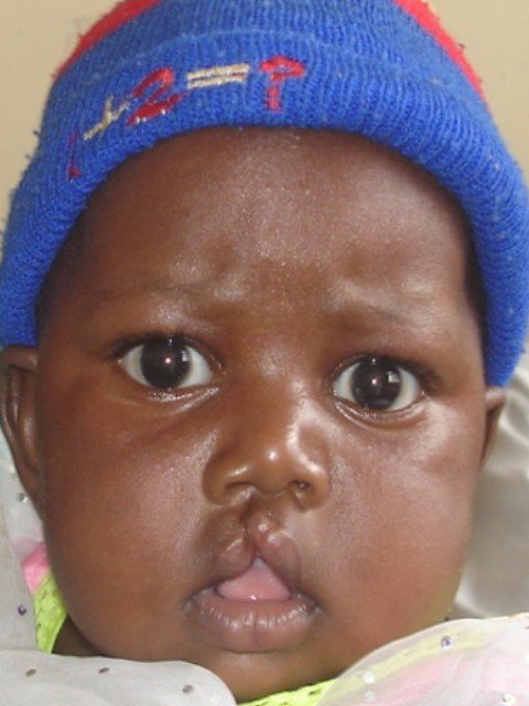 Cleft lip/palate surgery for African children