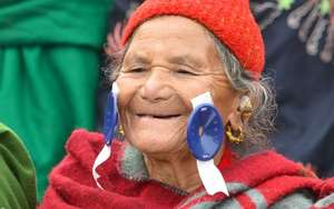 A Nepalese patient with sight restored
