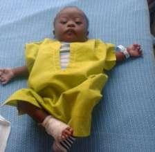 Baby Aqui after surgery