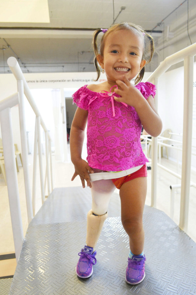 Give prosthetics to low limbs amputees in Colombia
