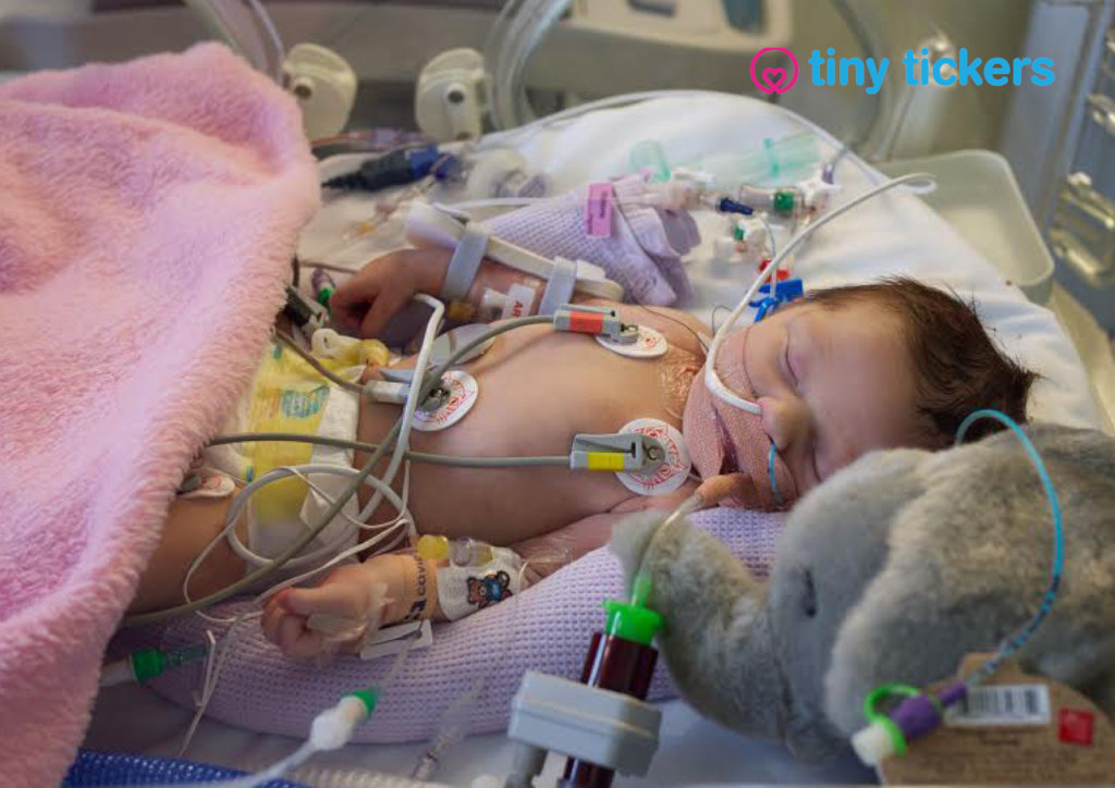 Help babies with serious heart conditions